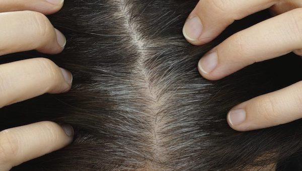ricrescita capelli bianchi